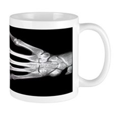 Hand X-Ray Small Mugs