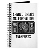 Arnold Chiari Malformation Journal