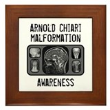 Arnold Chiari Malformation Framed Tile