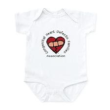 """Most common birth defect..."" Infant Creeper"