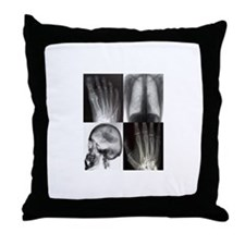 Unique X ray tech Throw Pillow