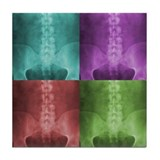 Digital X-Ray Art Tile Coaster