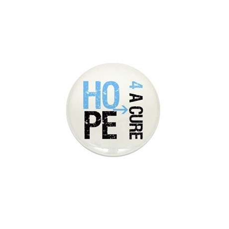 Hope Cure Prostate Cancer Mini Button (100 pack)