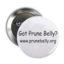 "Abdominal 2.25"" Button (10 pack)"