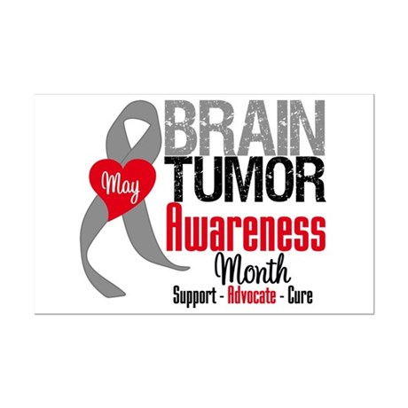 Brain Tumor Month Mini Poster Print