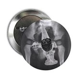 PELVIS X-RAY w/ GNOME - Button (10 pack)