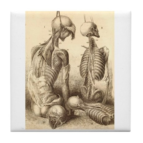 Medical Skeletons and Cadavers Tile Coaster