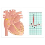 Electrical conduction of the heart