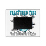 401ISitFRACTUREDskullblue copy.png Picture Frame