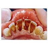 Dental plaque and tartar