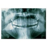 Panoramic dental X-ray of impacted wisdom teeth
