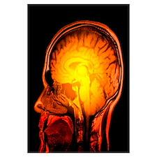 Brain anatomy, MRI scan