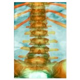 Healthy lower spine, X-ray