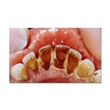 Dental plaque and tartar - Car Magnet