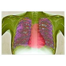 Tuberculosis, X-ray