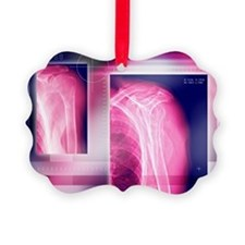 Broken collar bone, X-ray - Ornament