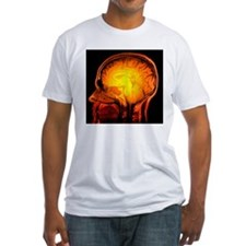 Brain anatomy, MRI scan - Shirt