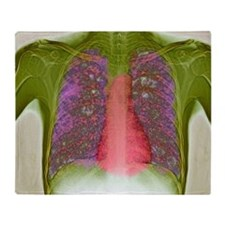 Tuberculosis, X-ray - Throw Blanket