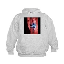 Anterior cruciate ligament tear, CT scan - Hoodie