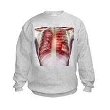 Tuberculosis, X-ray - Jumpers