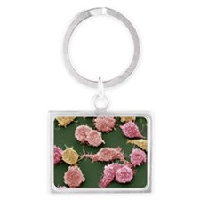 Cancer cells, SEM - Landscape Keychain