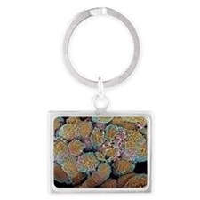 Breast cancer cells, SEM - Landscape Keychain