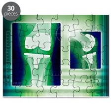 Knee replacement, X-rays - Puzzle
