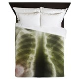 Pulmonary tapeworm cysts, X-ray - Queen Duvet