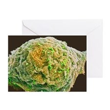 Cell infected with HIV, SEM - Greeting Cards (Pk o