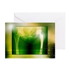 Hip replacement, X-ray - Greeting Cards (Pk of 20)