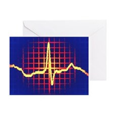 ECG trace - Greeting Cards (Pk of 20)