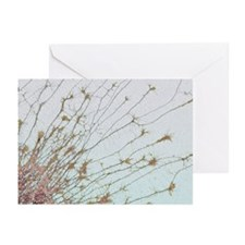 Nerve cell culture, SEM - Greeting Cards (Pk of 20