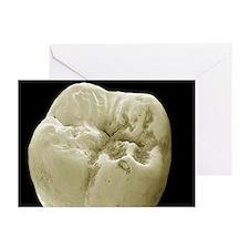 Molar tooth, SEM - Greeting Cards (Pk of 20)