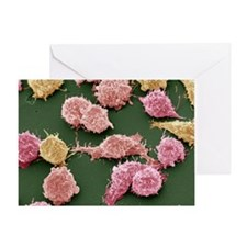Cancer cells, SEM - Greeting Card