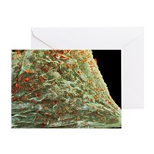 Cell infected with HIV, SEM - Greeting Card