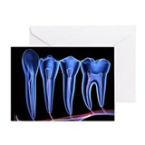 Teeth, cross section - Greeting Card