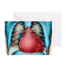 Enlarged heart, X-ray - Greeting Card