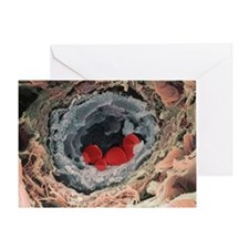 Blood vessel - Greeting Card