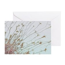 Nerve cell culture, SEM - Greeting Cards (Pk of 10