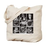 Fetal ultrasound images Tote Bag