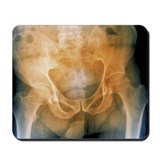 Pelvis with a leaning posture, X-ray - Mousepad