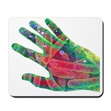 E coli bacteria on skin, artwork - Mousepad