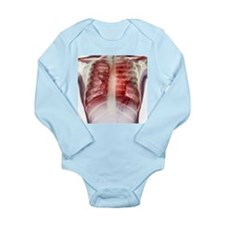 Tuberculosis, X-ray - Long Sleeve Infant Bodysuit