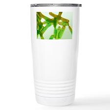 Legionella bacteria, light micrograph - Travel Mug
