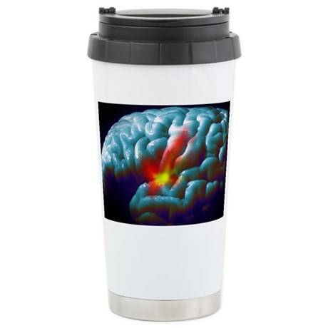 Parkinson's disease - Ceramic Travel Mug