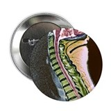 Healthy spine - 2.25' Button (10 pack)