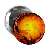 Brain anatomy, MRI scan - 2.25' Button (100 pack)
