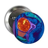Uterine fibroid, MRI scan - 2.25' Button (100 pack