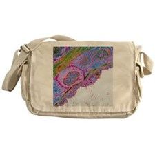 Heart blood vessel wall, TEM - Messenger Bag