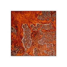 Rust seen on a steel sheet - Square Sticker 3
